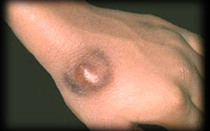 Medical Blog » Wounds and Injuries