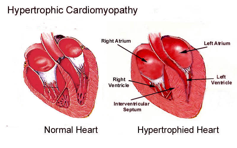 cardiomyopathy, hypertrophic – medical blog, Human body