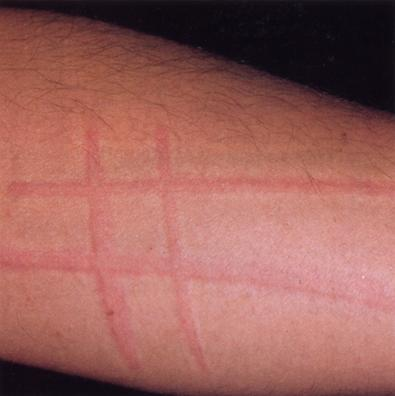 urticaria dermatographism Latest Info On Treatment Urticaria Factitia