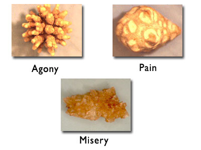 Medical Blog » Blog Archive » Kidney Stones